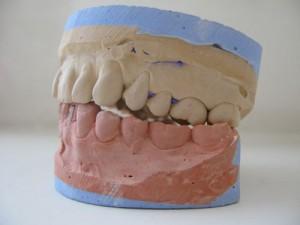 Die Angst vor dem Zahnarzt überwinden